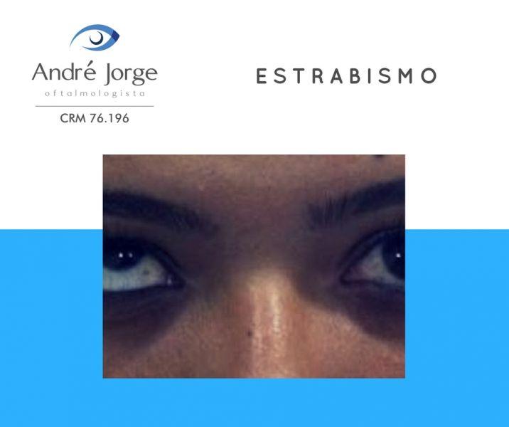 60028fe6e7f79 O estrabismo é uma patologia oftalmológica que consiste no desalinhamento  dos olhos. A maioria dos casos tem início na infância, mas também pode  ocorrer ...